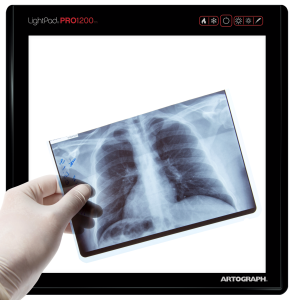 Medical-use-xray